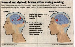 How Science Is Rewiring Dyslexic Brain >> How Science Is Trying To Cure Dyslexia By Rewiring The Brain